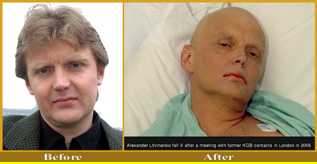Alexander Livinenko Before & after P.210