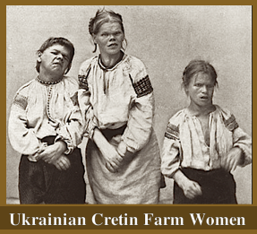 ukrainian-cretin-farm-women