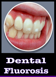 dental-f-f