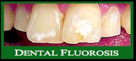 Dental-fluorosis-f