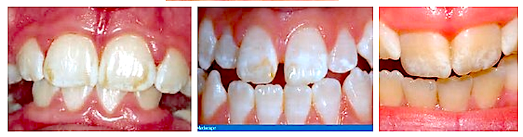 Dental F. 3 Photos