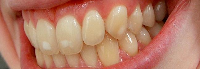 dental flurosis