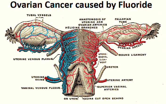 ovarian-cancer-fluoride-image