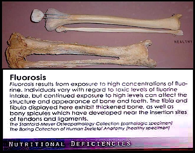 fluorosis-bones-f