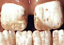 36-f-teeth