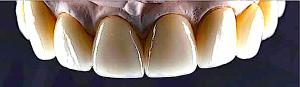 top-teeth